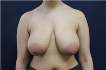 Breast Reduction Before Photo by Laurence Glickman, MD, MSc, FRCS(c),  FACS; Garden City, NY - Case 30274