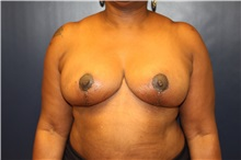 Breast Reduction After Photo by Laurence Glickman, MD, MSc, FRCS(c),  FACS; Garden City, NY - Case 30276