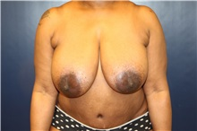 Breast Reduction Before Photo by Laurence Glickman, MD, MSc, FRCS(c),  FACS; Garden City, NY - Case 30276