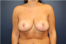Breast Reduction After Photo by Laurence Glickman, MD, MSc, FRCS(c),  FACS; Garden City, NY - Case 30277