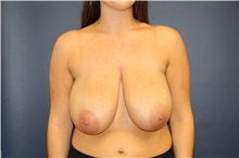 Breast Reduction Before Photo by Laurence Glickman, MD, MSc, FRCS(c),  FACS; Garden City, NY - Case 30277