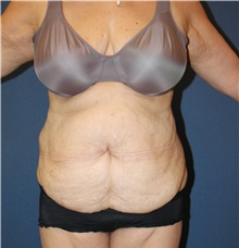 Tummy Tuck Before Photo by Laurence Glickman, MD, MSc, FRCS(c),  FACS; Garden City, NY - Case 34816