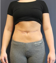 Liposuction After Photo by Laurence Glickman, MD, MSc, FRCS(c),  FACS; Garden City, NY - Case 34828