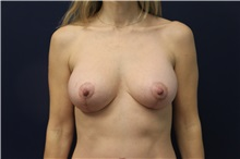 Breast Lift After Photo by Laurence Glickman, MD, MSc, FRCS(c),  FACS; Garden City, NY - Case 34839