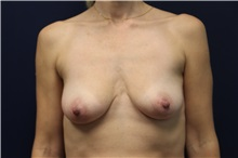 Breast Lift Before Photo by Laurence Glickman, MD, MSc, FRCS(c),  FACS; Garden City, NY - Case 34839