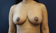 Breast Reduction After Photo by Laurence Glickman, MD, MSc, FRCS(c),  FACS; Garden City, NY - Case 34858