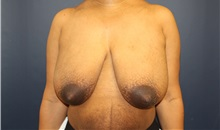 Breast Reduction Before Photo by Laurence Glickman, MD, MSc, FRCS(c),  FACS; Garden City, NY - Case 34858