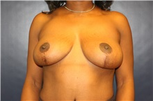 Breast Lift After Photo by Laurence Glickman, MD, MSc, FRCS(c),  FACS; Garden City, NY - Case 34859