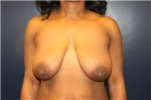 Breast Lift Before Photo by Laurence Glickman, MD, MSc, FRCS(c),  FACS; Garden City, NY - Case 34859