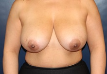 Breast Reduction Before Photo by Laurence Glickman, MD, MSc, FRCS(c),  FACS; Garden City, NY - Case 34866