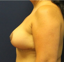 Breast Reduction After Photo by Laurence Glickman, MD, MSc, FRCS(c),  FACS; Garden City, NY - Case 34866