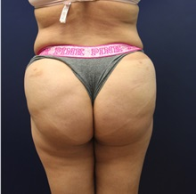 Buttock Lift with Augmentation After Photo by Laurence Glickman, MD, MSc, FRCS(c),  FACS; Garden City, NY - Case 34868