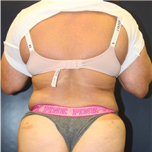 Liposuction After Photo by Laurence Glickman, MD, MSc, FRCS(c),  FACS; Garden City, NY - Case 34869