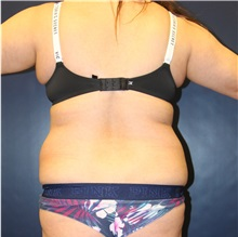 Liposuction Before Photo by Laurence Glickman, MD, MSc, FRCS(c),  FACS; Garden City, NY - Case 34869