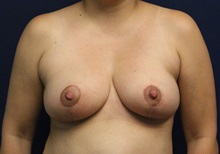 Breast Reduction After Photo by Laurence Glickman, MD, MSc, FRCS(c),  FACS; Garden City, NY - Case 34911