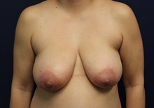 Breast Reduction Before Photo by Laurence Glickman, MD, MSc, FRCS(c),  FACS; Garden City, NY - Case 34911