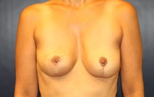 Breast Lift After Photo by Laurence Glickman, MD, MSc, FRCS(c),  FACS; Garden City, NY - Case 34913