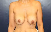 Breast Lift Before Photo by Laurence Glickman, MD, MSc, FRCS(c),  FACS; Garden City, NY - Case 34913