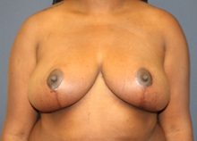 Breast Reduction After Photo by Laurence Glickman, MD, MSc, FRCS(c),  FACS; Garden City, NY - Case 34917