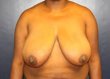 Breast Reduction Before Photo by Laurence Glickman, MD, MSc, FRCS(c),  FACS; Garden City, NY - Case 34917