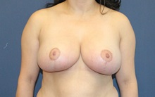 Breast Reduction After Photo by Laurence Glickman, MD, MSc, FRCS(c),  FACS; Garden City, NY - Case 34918