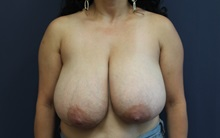 Breast Reduction Before Photo by Laurence Glickman, MD, MSc, FRCS(c),  FACS; Garden City, NY - Case 34918