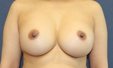 Breast Augmentation After Photo by Laurence Glickman, MD, MSc, FRCS(c),  FACS; Garden City, NY - Case 34936