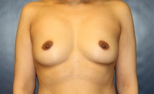 Breast Augmentation Before Photo by Laurence Glickman, MD, MSc, FRCS(c),  FACS; Garden City, NY - Case 34936