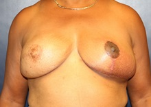 Breast Reconstruction After Photo by Laurence Glickman, MD, MSc, FRCS(c),  FACS; Garden City, NY - Case 35243