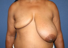 Breast Reconstruction Before Photo by Laurence Glickman, MD, MSc, FRCS(c),  FACS; Garden City, NY - Case 35243