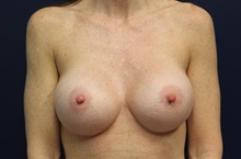 Breast Augmentation After Photo by Laurence Glickman, MD, MSc, FRCS(c),  FACS; Garden City, NY - Case 35245