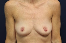 Breast Augmentation Before Photo by Laurence Glickman, MD, MSc, FRCS(c),  FACS; Garden City, NY - Case 35245