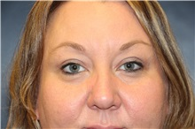 Eyelid Surgery After Photo by Laurence Glickman, MD, MSc, FRCS(c),  FACS; Garden City, NY - Case 36315