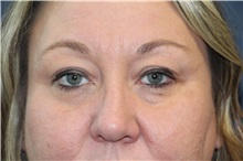 Eyelid Surgery Before Photo by Laurence Glickman, MD, MSc, FRCS(c),  FACS; Garden City, NY - Case 36315
