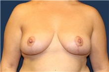 Breast Reduction After Photo by Laurence Glickman, MD, MSc, FRCS(c),  FACS; Garden City, NY - Case 36323