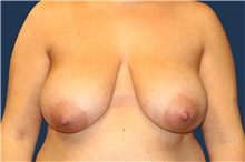 Breast Reduction Before Photo by Laurence Glickman, MD, MSc, FRCS(c),  FACS; Garden City, NY - Case 36323