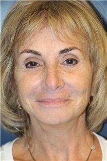Facelift After Photo by Laurence Glickman, MD, MSc, FRCS(c),  FACS; Garden City, NY - Case 36327