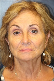 Facelift Before Photo by Laurence Glickman, MD, MSc, FRCS(c),  FACS; Garden City, NY - Case 36327