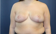 Breast Reduction After Photo by Laurence Glickman, MD, MSc, FRCS(c),  FACS; Garden City, NY - Case 38209
