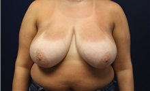 Breast Reduction Before Photo by Laurence Glickman, MD, MSc, FRCS(c),  FACS; Garden City, NY - Case 38209