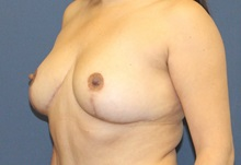 Breast Reduction After Photo by Laurence Glickman, MD, MSc, FRCS(c),  FACS; Garden City, NY - Case 38213