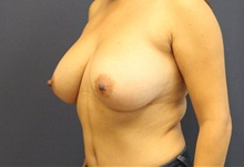 Breast Reduction Before Photo by Laurence Glickman, MD, MSc, FRCS(c),  FACS; Garden City, NY - Case 38213