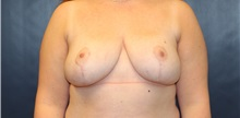 Breast Reduction After Photo by Laurence Glickman, MD, MSc, FRCS(c),  FACS; Garden City, NY - Case 38216