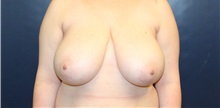 Breast Reduction Before Photo by Laurence Glickman, MD, MSc, FRCS(c),  FACS; Garden City, NY - Case 38216