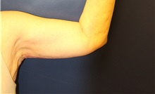 Arm Lift After Photo by Laurence Glickman, MD, MSc, FRCS(c),  FACS; Garden City, NY - Case 38220