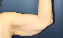 Arm Lift Before Photo by Laurence Glickman, MD, MSc, FRCS(c),  FACS; Garden City, NY - Case 38220