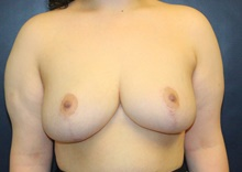 Breast Reduction After Photo by Laurence Glickman, MD, MSc, FRCS(c),  FACS; Garden City, NY - Case 41407