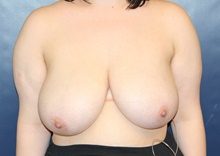 Breast Reduction Before Photo by Laurence Glickman, MD, MSc, FRCS(c),  FACS; Garden City, NY - Case 41407