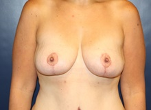 Breast Lift After Photo by Laurence Glickman, MD, MSc, FRCS(c),  FACS; Garden City, NY - Case 41821