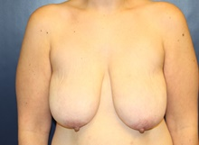 Breast Lift Before Photo by Laurence Glickman, MD, MSc, FRCS(c),  FACS; Garden City, NY - Case 41821